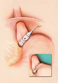 Lap-Band Surgery